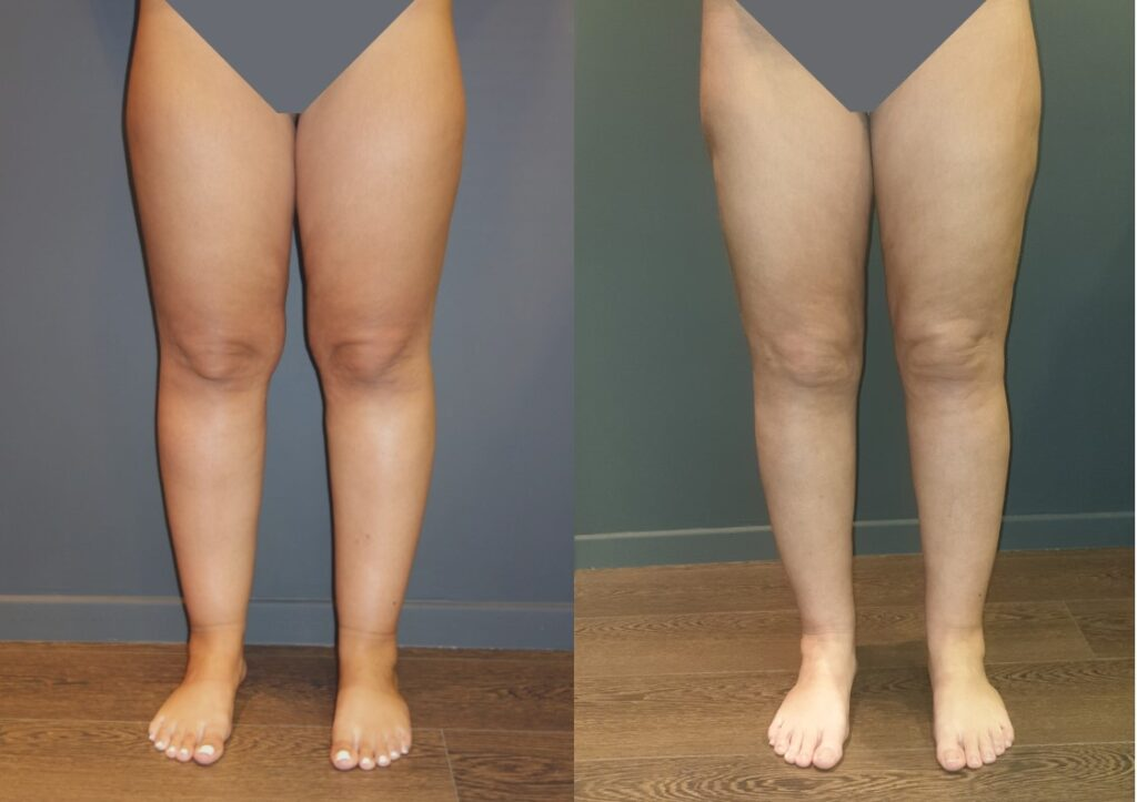 Γυναίκα 25 ετών με λιποίδημα κάτω άκρων Σταδίου 1-2, υποβλήθηκε στο πρώτο στάδιο λιποαναρρόφησης υπερήχων VASER. Τόσο το αισθητικό αποτέλεσμα όσο και η βελτίωση των συμπτωμάτων του πόνου και του βάρους στα πόδια ήταν άμεσα ορατά.