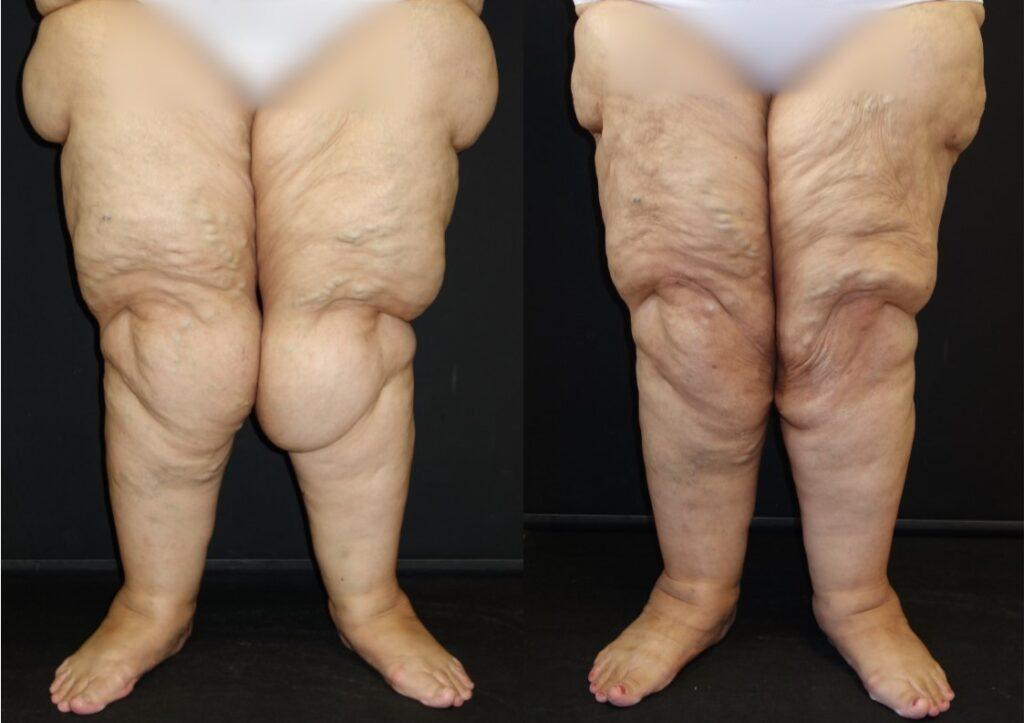 Γυναίκα 55 ετών με λιποίδημα κάτω άκρων Σταδίου 3 και έντονη συμπτωματολογία στα γόνατα. Λόγω της αδυναμίας βάδισης, υποβλήθηκε σε λιπεκτομή στις έσω επιφάνειες των γονάτων και στις έξω επιφάνειες των μηρών.