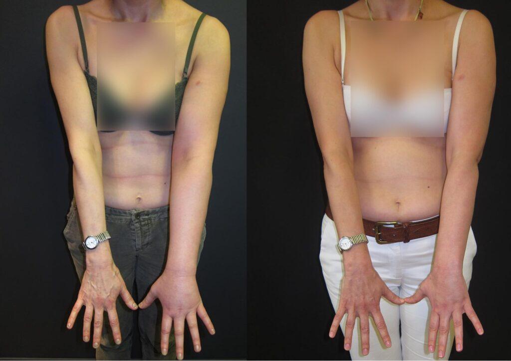 Γυναίκα μετά από θεραπεία για καρκίνο μαστού εμφάνισε λεμφοίδημα αριστερού άνω άκρου Σταδίου 2, με πολλαπλά επεισόδια λοίμωξης του δέρματος κάθε χρόνο. Υποβλήθηκε το 2014 σε ηλικία 47 ετών σε μεταμόσχευση λεμφαδένων και παρουσίασε βελτίωση όχι μόνο στην όψη του άνω άκρου, αλλά και στον αριθμό των λοιμώξεων.