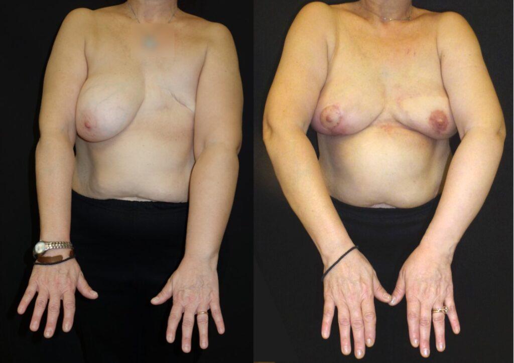 Γυναίκα ηλικίας 55 ετών το 2015, με λεμφοίδημα αριστερού άνω άκρου Σταδίου 2 και μαστεκτομή αριστερά, υποβλήθηκε σε ταυτόχρονη επέμβασης αντιμετώπισης λεμφοιδήματος με μεταμόσχευση λεμφαδένων και αποκατάστασης μαστού με τμήμα της ράχης και λιπομεταφορά. Πέντε χρόνια μετά παρουσιάζει σταθερά αποτελέσματα χωρίς συμπτώματα από το χέρι της.