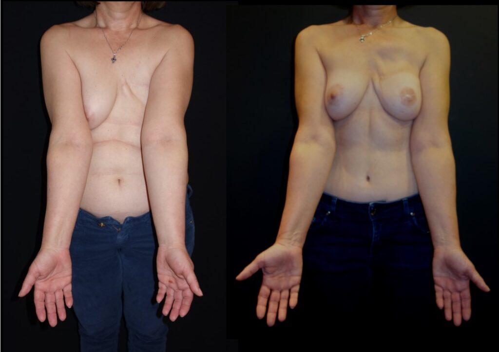 Γυναίκα 50 ετών με λεμφοίδημα αριστερού άνω άκρου Σταδίου 2 και μαστεκτομή δεξιά, υποβλήθηκε το 2016 σε ταυτόχρονη αποκατάσταση μαστού και αντιμετώπιση λεμφοιδήματος με μεταφορά τμήματος της κοιλιά με λεμφαδένες. Μετεγχειρητικά παρουσιάζει ικανοποιητική συμμετρία των μαστών και επιστροφή του άνω άκρου στη φυσιολογική κατάσταση.